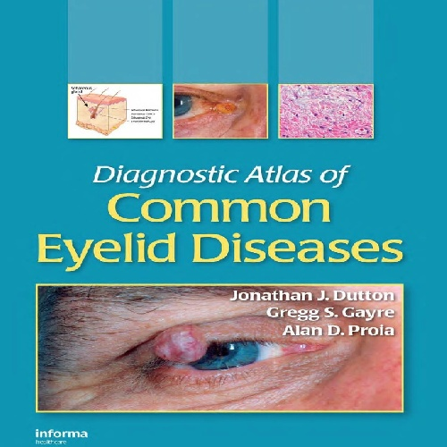 دانلود کتاب Diagnostic atlas of common eyelid diseases 2007